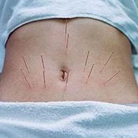 Что такое рефлексотерапия при энурезе